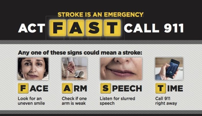 The Two Most Important Things to Know About Stroke - Hunt ...